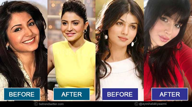 bollywood stars whose plastic surgeries have gone wrong