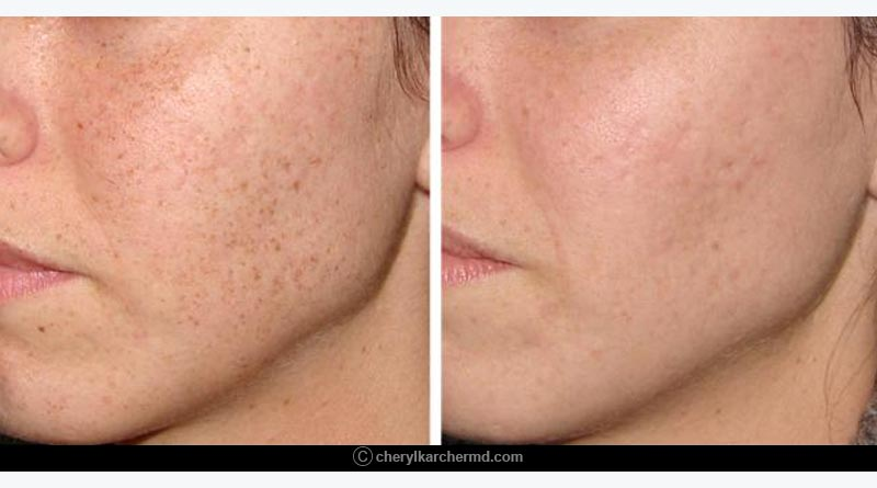 relief from freckles